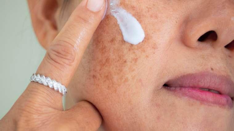 Age spots & Freckles