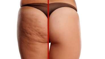 Cellulite & Crepey Skin