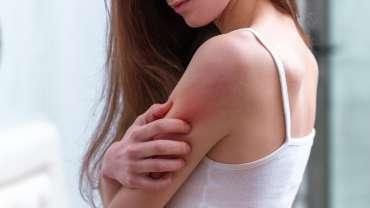 Eczema, Psoriasis & Rosacea