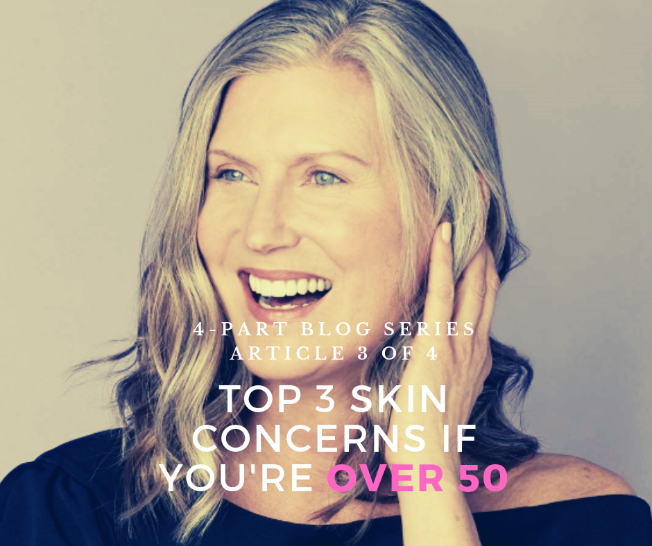 4-Part Series~Your Skin as You Age: Top 3 Skin Concerns if You're Over 50