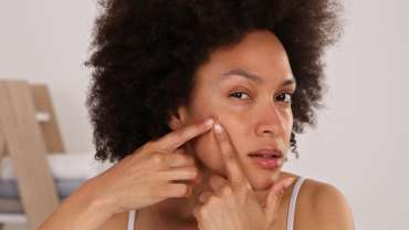 Clearing up stubborn acne