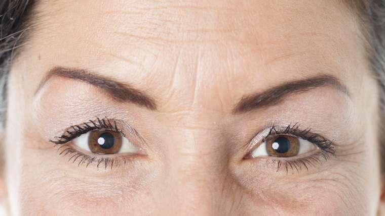 Getting rid of  wrinkles
